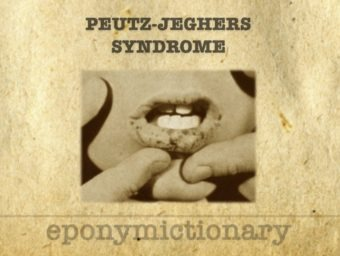 Peutz-Jeghers syndrome 340
