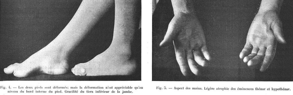 Roussy G, Lévy GA. La dystasie aréflexique héréditaire 1932