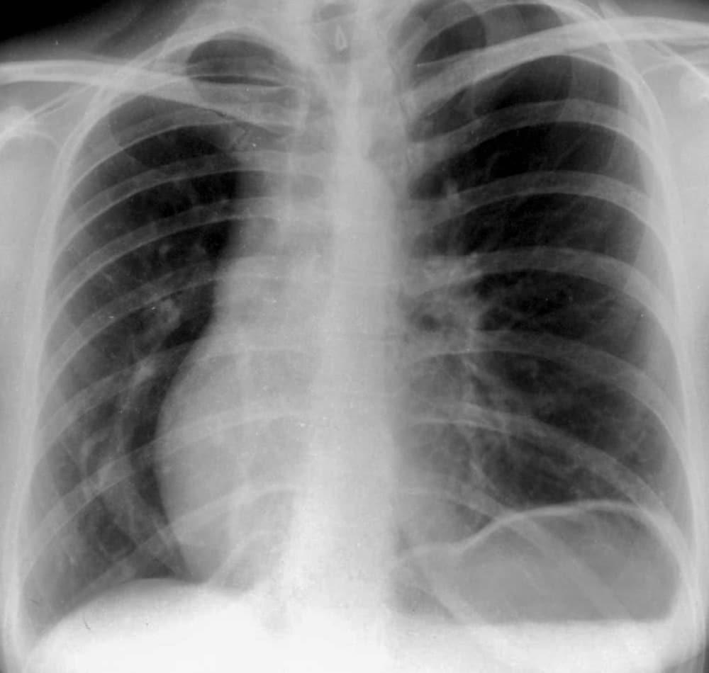Scimitar syndrome CXR vein with scimitar 001