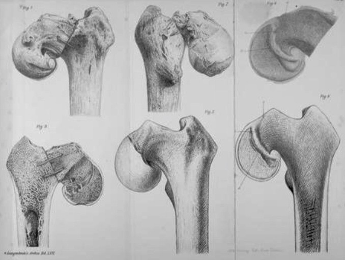 Sprengel 1898 Epiphyseal Coxa Vara or Displacement of the Capital Epiphysis of the Femur in Adolescence