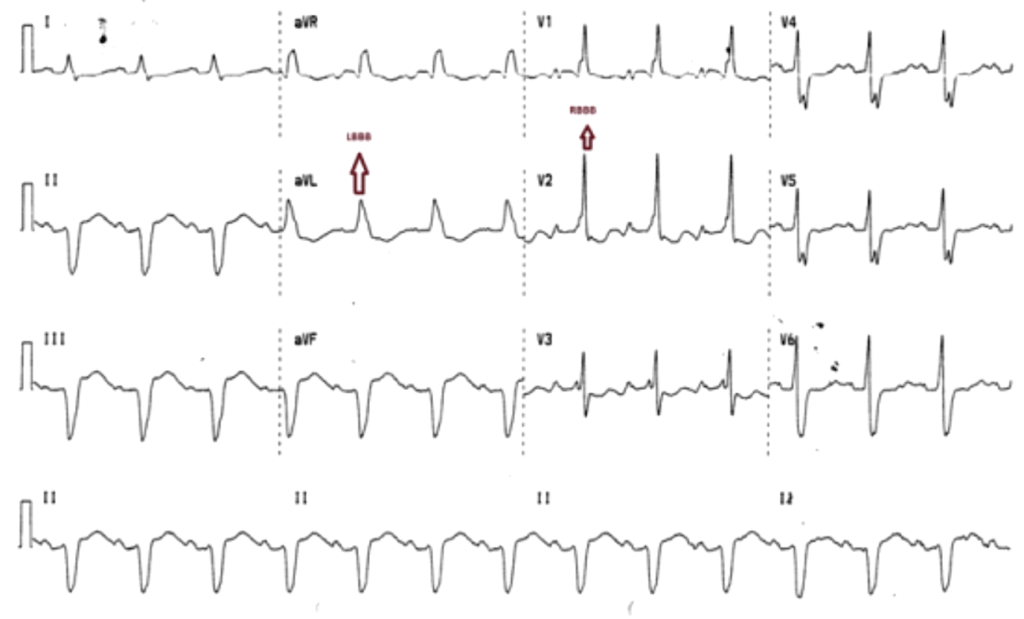 Standard MBBB. RBBB pattern in precordial leads V1-3
