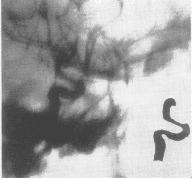 Tolosa--ES.-Periarteritic-lesions-of-the-cavernous-syphon-fig-1-1954