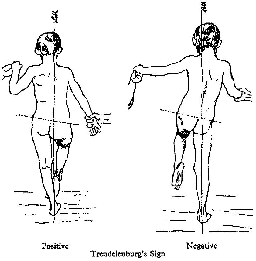 Trendelenburg Test 1895