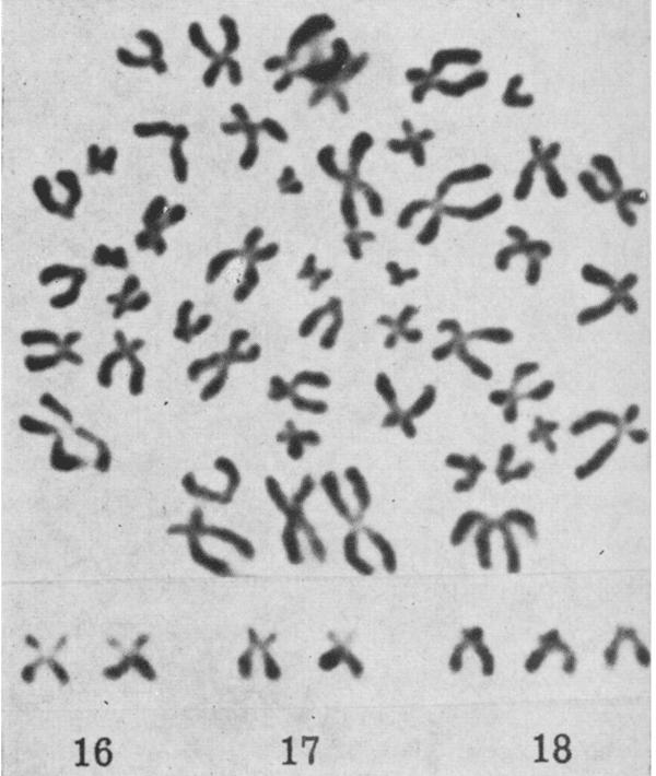 Trisomy 18 Patau smith et al