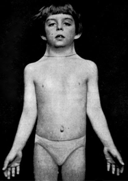 Ullrich -Turner syndrome 1930