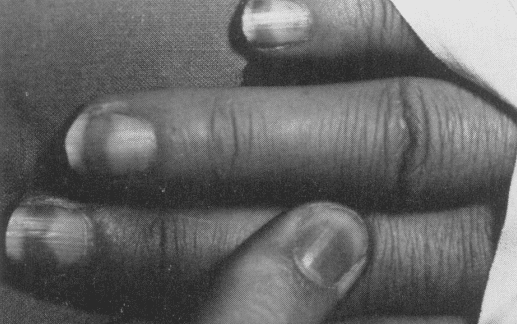 William Bennett Bean 1963 half and half nails