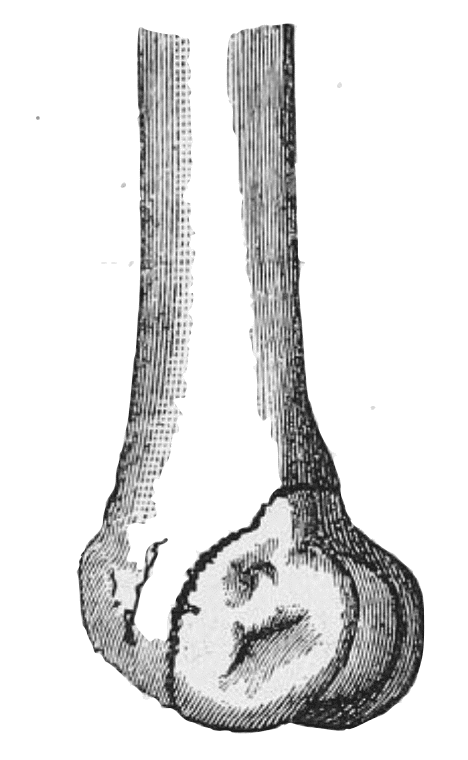 1888 Hoffa Fracturen des unteren Femurendes