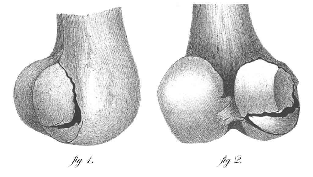 1891 Braun 1891 Seltenere Fracture des Oberschenkels Fig 1 and Fig 2