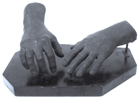 Cast of the hands of Berkeley George Andrew Moynihan, the First Lord Moynihan 1932