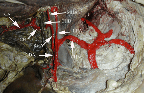 Moynihan's hump of right hepatic artery
