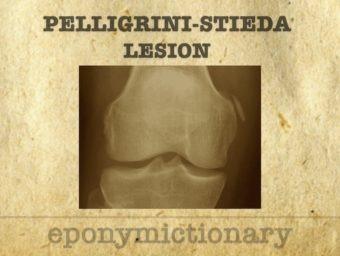 Pellegrini-Stieda lesion 680