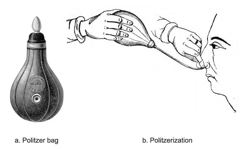 Politzerization and Politzer bag 1863