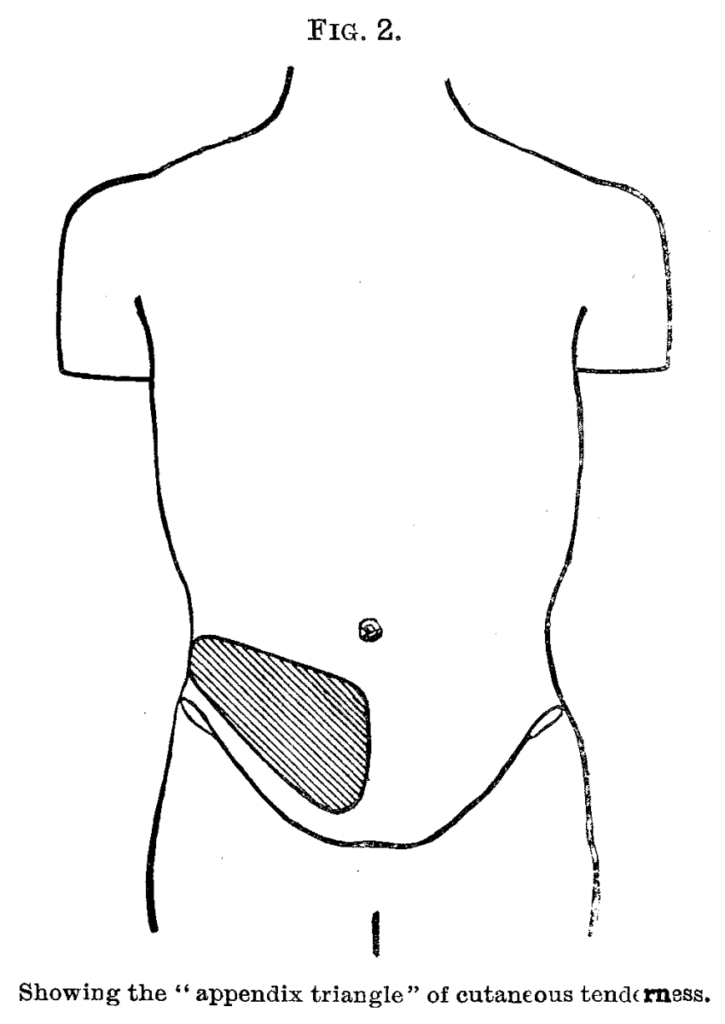 Sherren triangle of cutaneous hyperalgesia appendicitis