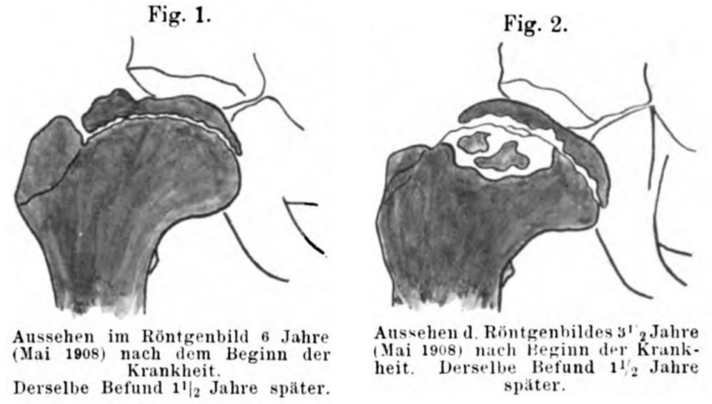 Waldenström 1909 Fig 1 and 2