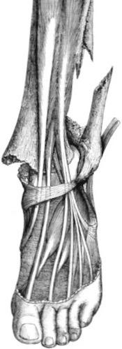 Dupuytren fracture