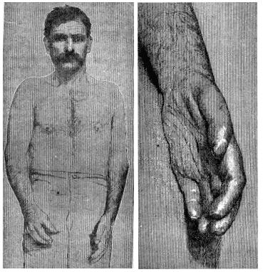 Klumpke palsy 1885 p613