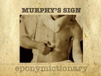 Murphy's sign 340