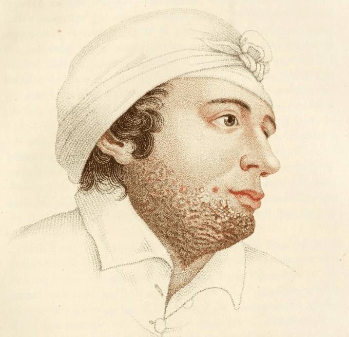 Alibert Dartre pustulose mentagre 1825 Sycosis barbae