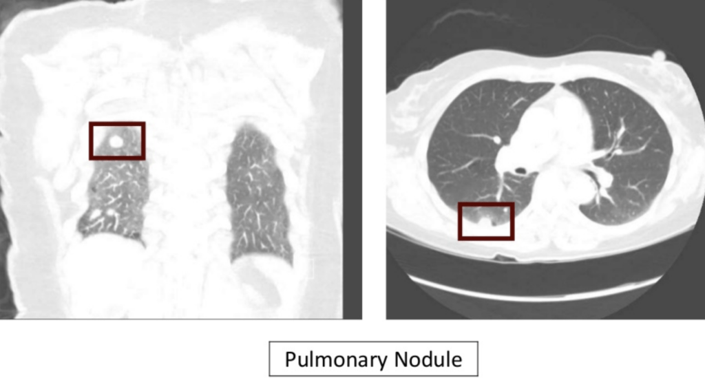 CXR Case 0152c pulmonary nodule