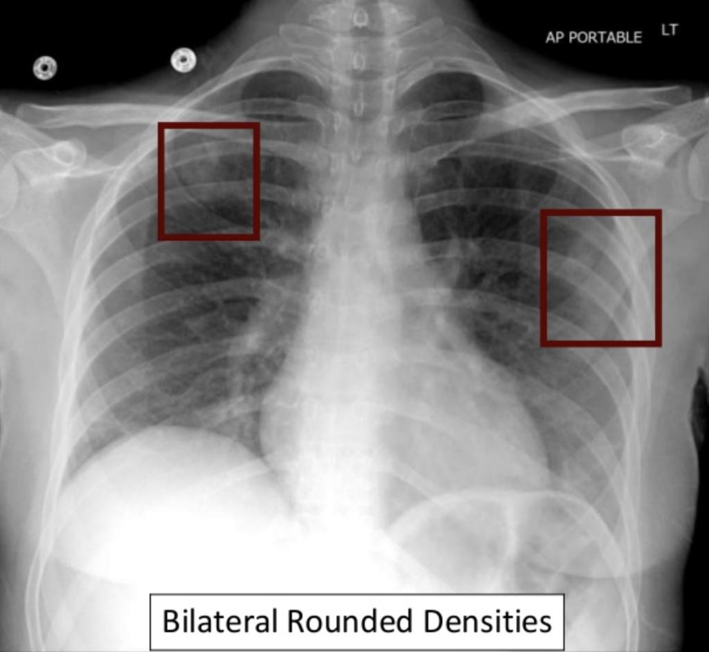 CXR Case 0155 CXR septic emboli