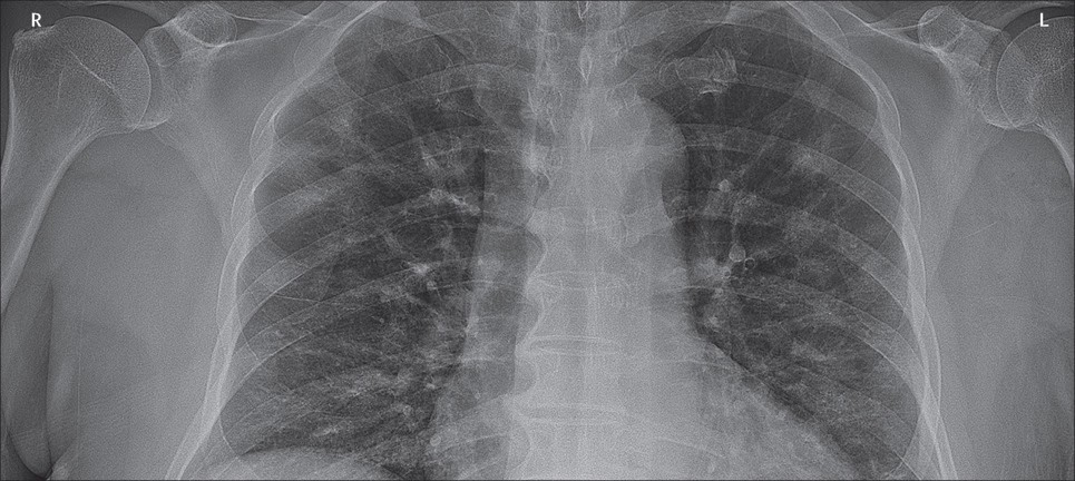 Chest x-ray from Canada's first case of COVID-19
