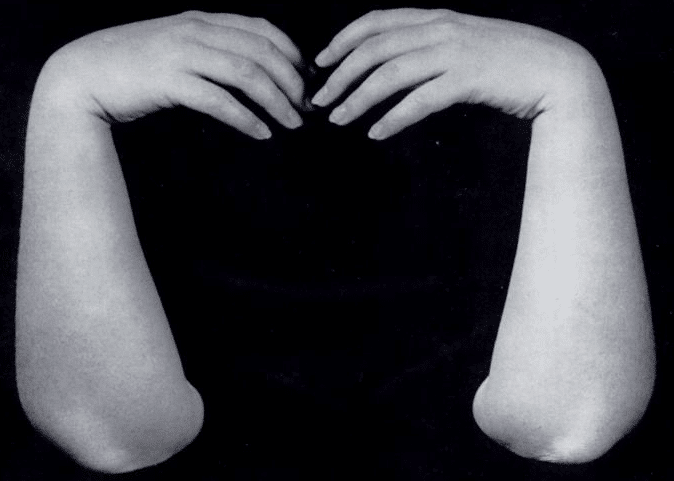 Phalen test wrist-flexion test in carpal tunnel 1950 fig 2