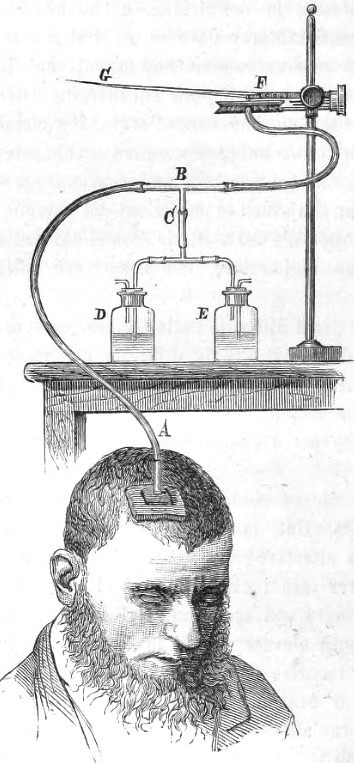 Schematic of the plethysmograph 1880