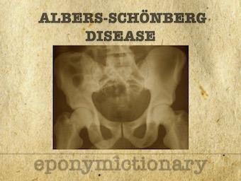 Albers-Schönberg disease 340 1