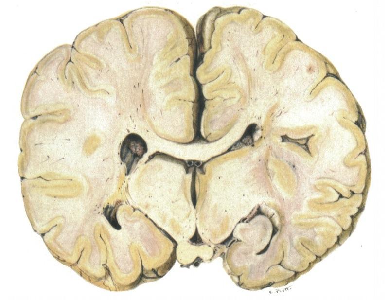 Canavan MM. Schilder's encephalitis periaxialis diffusa 1831