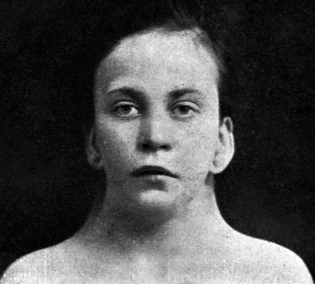 Funke 1902 Ullrich-Turner syndrome