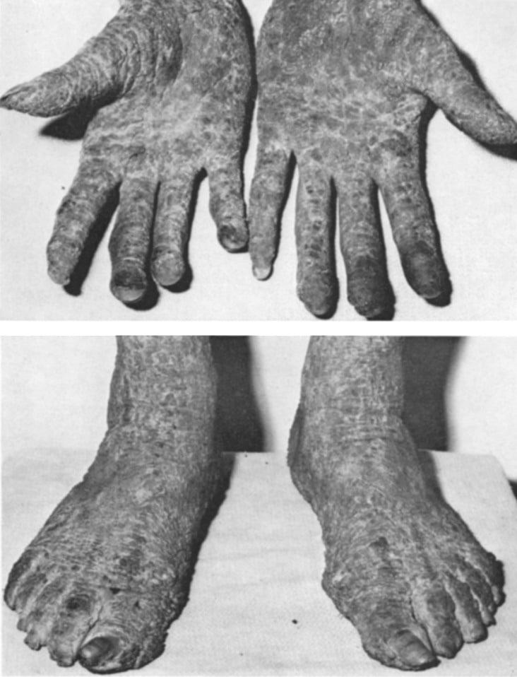 Ichthyosis hystrix type Curth-Macklin 1970