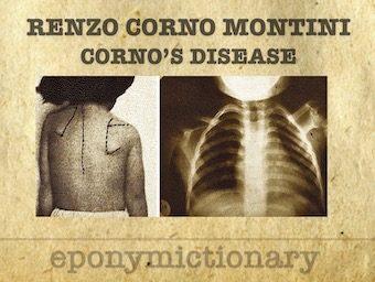 Renzo Corno Montini (1927 - 1965) Corno's disease 340