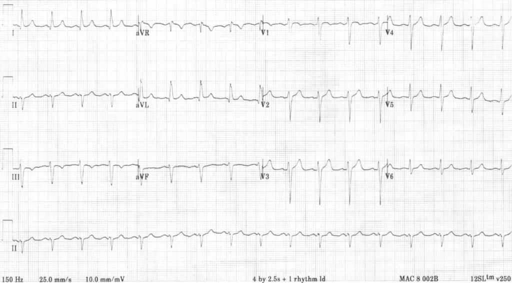 ECG 2 Left Anterior Fascicular Block (LAFB)