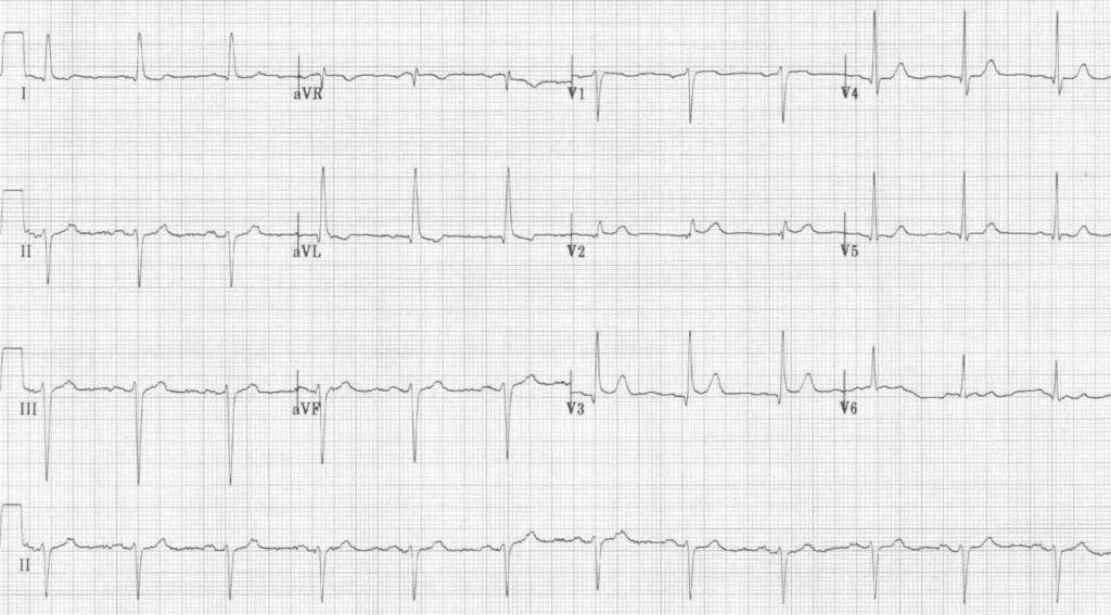 ECG 3 Left Anterior Fascicular Block (LAFB)