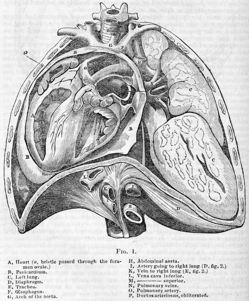 George Cooper Scimitar syndrome 1836