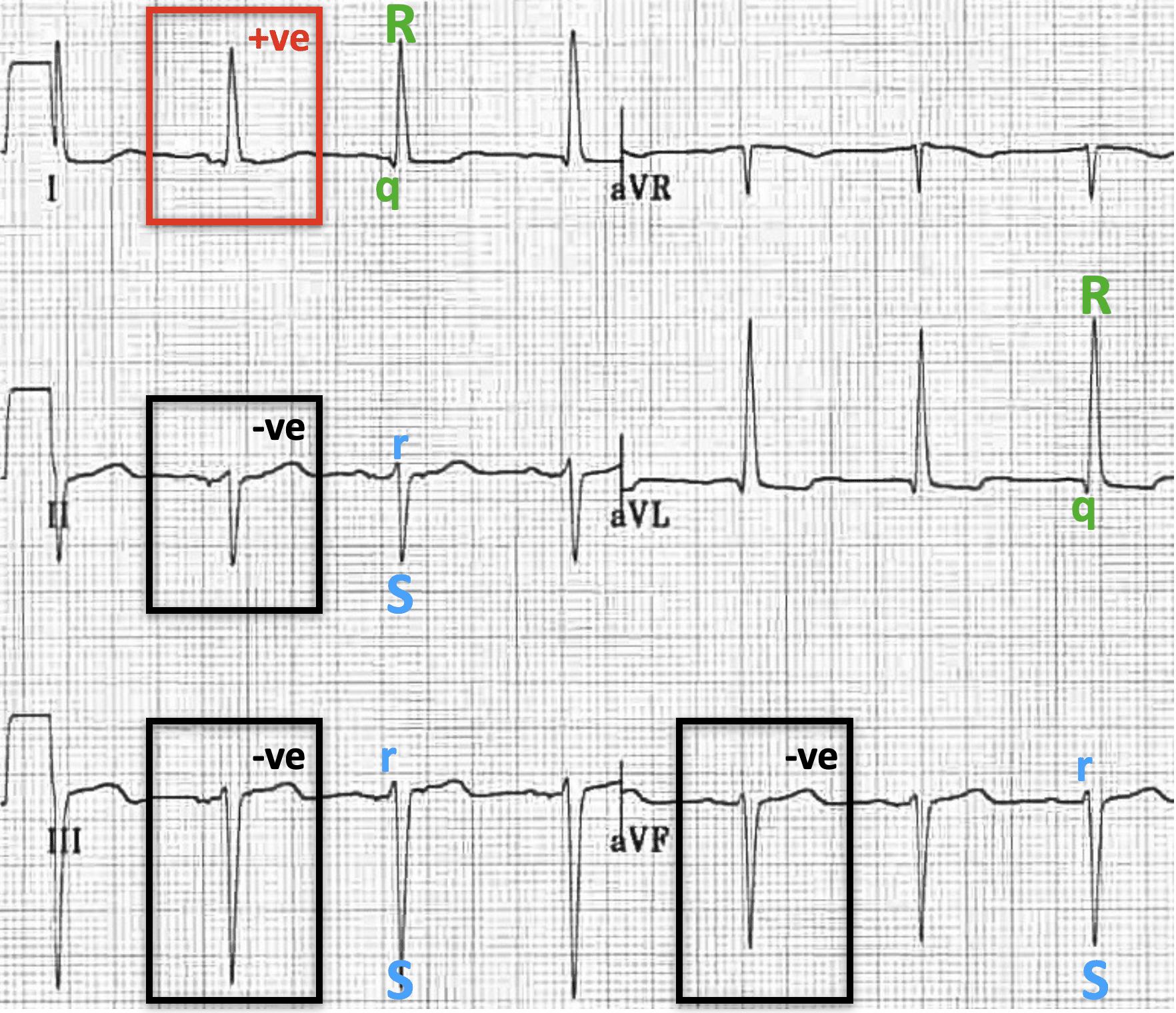 Left Anterior Fascicular Block (LAFB) overview 2