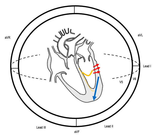 Sequence of conduction in LPFB