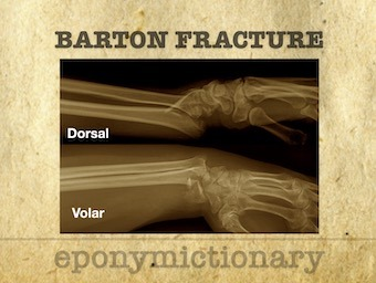 Barton fracture dorsal volar 340