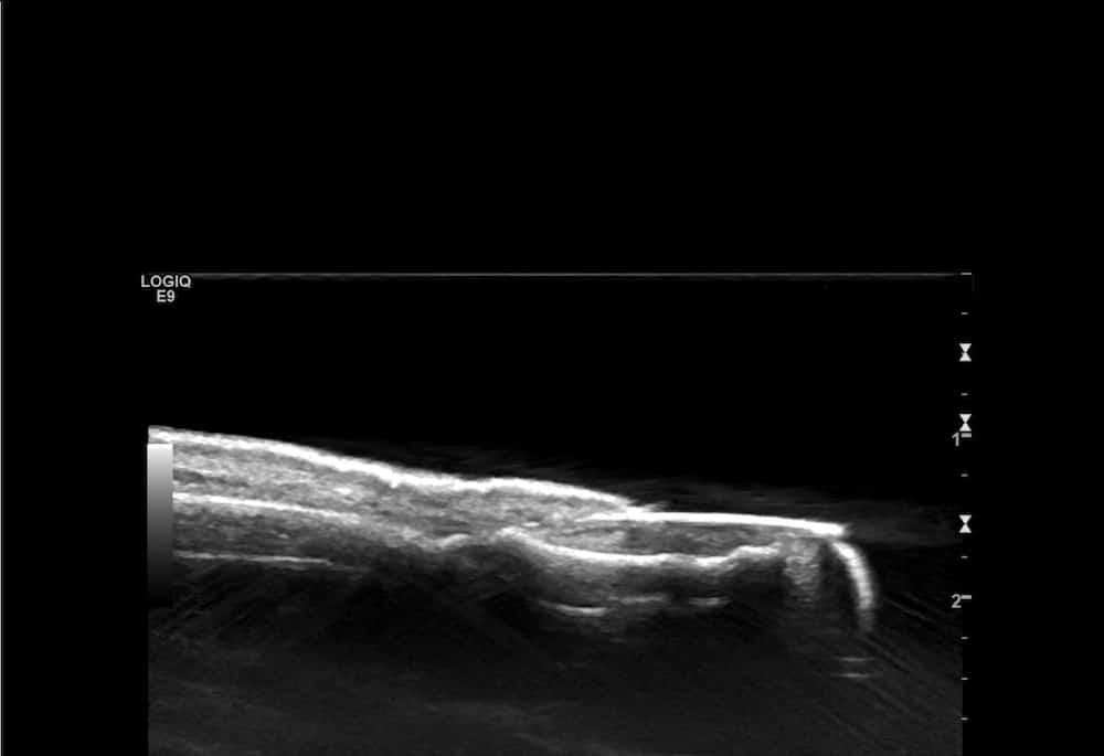 Water Bath Ultrasound Normal Finger.