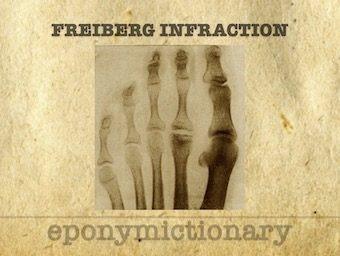 Freiberg infraction 340