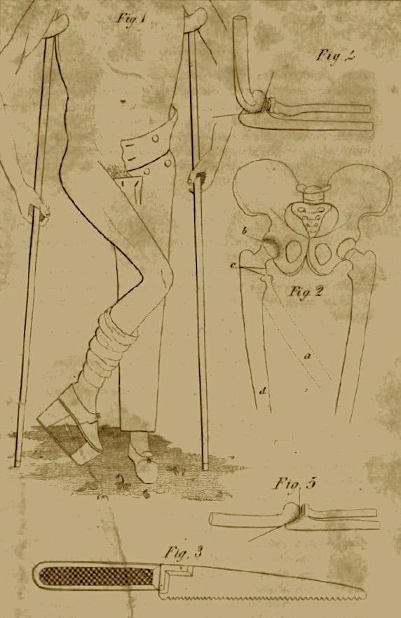 John Barton Arthroplasty (1826)