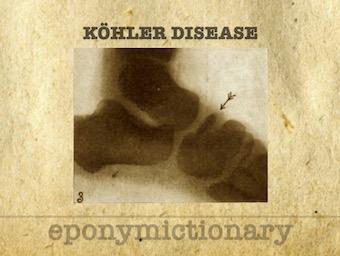 Köhler disease 340