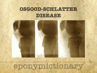 Osgood-Schlatter disease 340