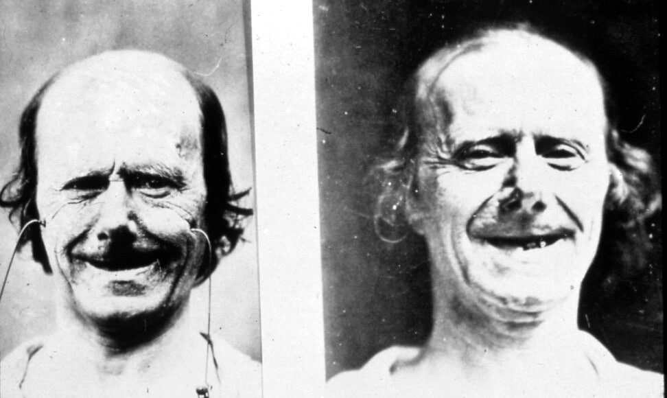 Electric current applied to the face to simulate different smiles.