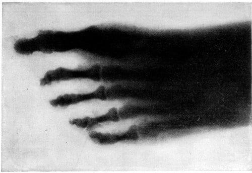 Bones of a human foot photographed through the flesh. AAC Swinton 1896