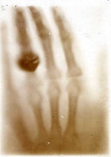 Hand mit Ringen
