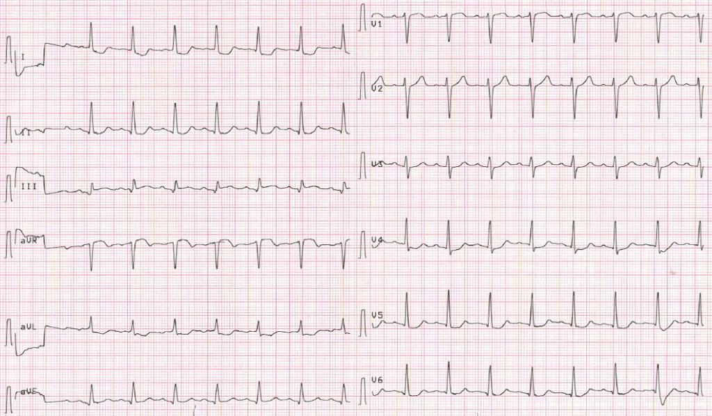 Aslanger pattern of ECG changes in inferior myocardial infarction 2020