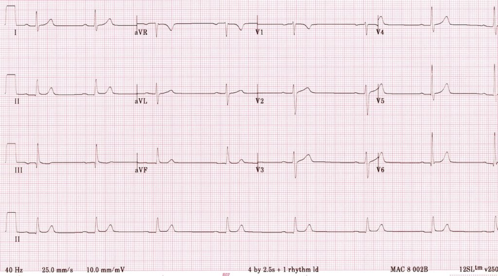 Bradycardia sinus in BRASH syndrome 1400