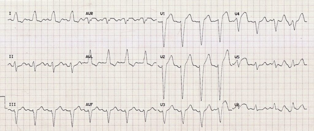 ECG-Left-Bundle-Branch-Block-LBBB-2-2