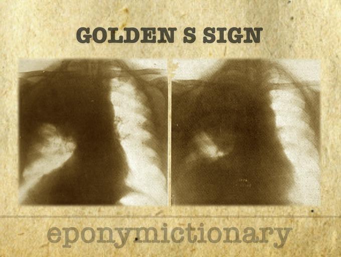 Golden S Sign 340